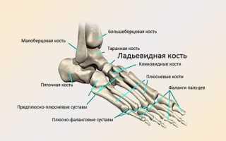 Все способы лечения артрита стопы в домашних условиях