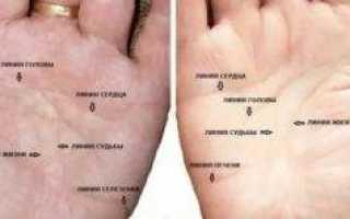 Причины боли в руке между плечом и локтем