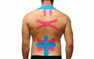 Выясняем как правильно накладывать тейпы на спину