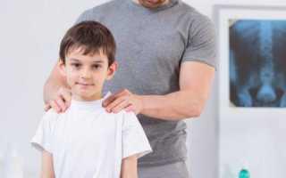 Эффективные методы лечения сколиоза у подростков: лфк и массаж, корректоры осанки и физиопроцедуры