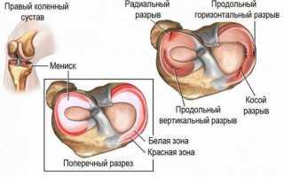 Артроз коленного сустава рентгеновские снимки