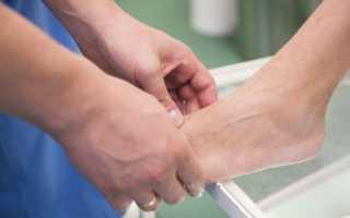 Как проводят рентгенографию стопы и что она показывает?