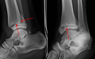 4 этапа реабилитации после перелома лодыжки: рекомендации, которые уберегут вас от рецидива