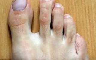 Чернеет ноготь на большом пальце ноги: причины, особенности лечения