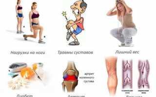 Врач который лечит артроз: ортопед, травматолог, ревматолог