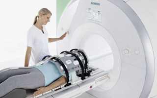 Невринома позвоночника: причины, симптомы, лечение