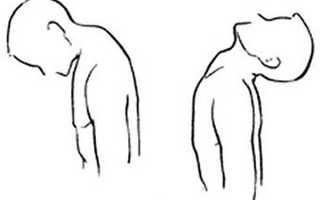 «бычья» шея у мужчин: эффективные упражнения и правила выполнения