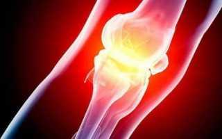 Артроз коленного сустава: можно ли вылечить без операции?