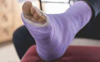 Переломы фаланги пальца кисти