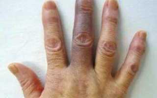 Посинел палец на руке: возможные причины и лечение