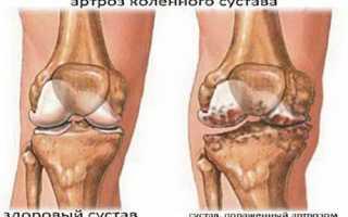 Список показаний и ограничений к проведению узи коленных суставов