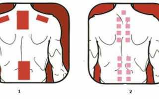 Перцовый пластырь в терапии шейного остеохондроза: польза и вред. механизм воздействия