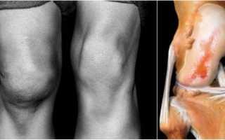 Деформирующий артроз голеностопного сустава инвалидность положена