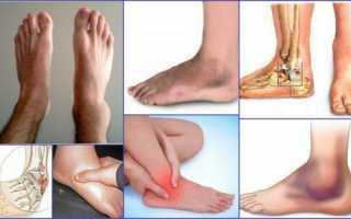 Показания к рентгену голеностопного сустава и его результаты