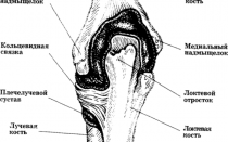 Причины болей в коленях и локтях, способы лечения, методы диагностики, профилактики и потенциальные осложнения