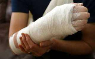 Перелом кисти руки со смещением и без