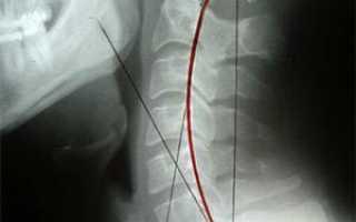 Шейный лордоз симптомы лечение что значит выпрямлен лордоз шейного отдела позвоночника