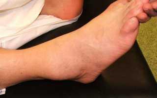 Как лечить синовит голеностопного сустава