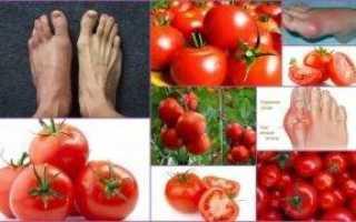Можно ли кушать помидоры при подагре