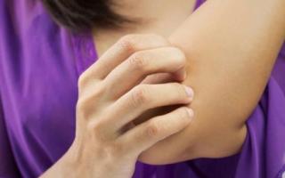 Жжение в локтевом суставе после ушиба