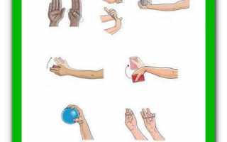 Тендовагинит лучезапястного сустава: симптомы и лечение воспаления