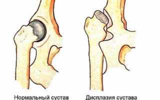 Ядра окостенения тазобедренных суставов не сформированы