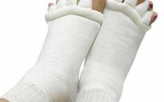 Искривление пальцев на ногах: причины, методы лечения. операция на стопе