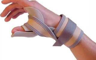 2 симптома разрыва сухожилий на пальцах рук
