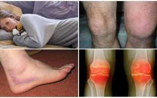 Артрит: симптомы и лечение воспаления суставов