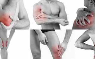 Болят мышцы рук и ног без причины лечение