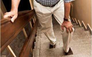 Как лечить мениск коленного сустава в домашних условиях