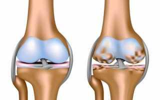 Можно ли артроз коленного сустава лечить медом и как это делать?