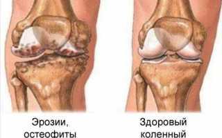 Симптомы и лечение подагрического артрита коленного сустава