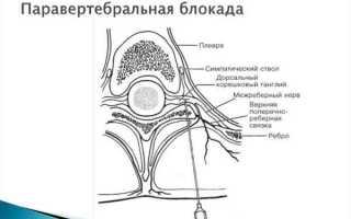 Как проводится блокада при грыже шейного отдела позвоночника