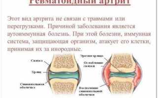 Боль в кисти — причины, диагностика, лечение