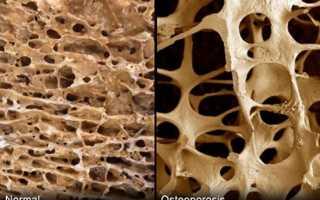 Артроз и остеопороз: тактика лечения двух заболеваний одновременно