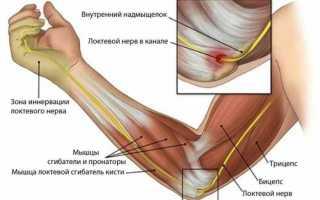 При отжиманиях болят локтевые суставы