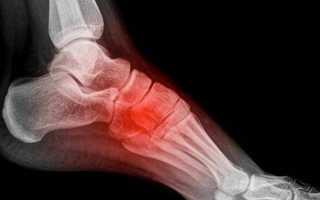 Почему болит стопа и подошва ноги около пятки с внутренней стороны