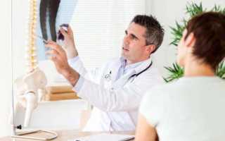 Болезни спины и позвоночника симптомы и лечение