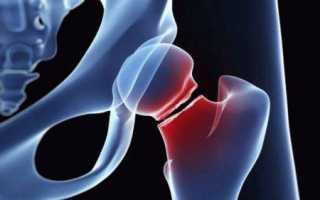 Сколько времени займет лечение перелома тазобедренного сустава в пожилом возрасте