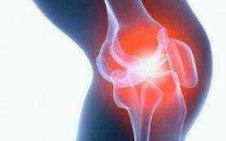 Скопление жидкости в коленном суставе