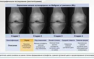 Как лечится деформирующий артроз тазобедренного сустава 1, 2 и 3 степени