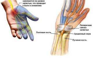 Причины, по которым немеют руки по ночам. полный обзор заболеваний