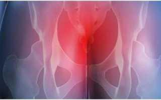 Боль в крестцовом отделе позвоночника причины у мужчин