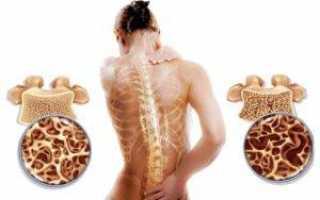 Сложный остеопороз поясничного отдела: признаки, терапия и профилактика
