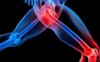 Упражнения по бубновскому для деформирующего артроза коленных суставов