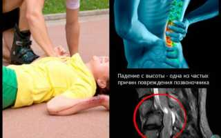 Что такое компрессионный перелом позвоночника у детей?