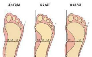 Основные ортопедические проблемы, возникающие у детей до 3 лет, и их лечение