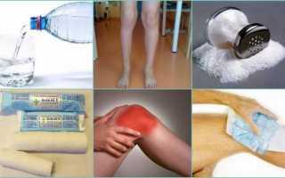 Гипертонический раствор при артрите и артрозе: солевой компресс для суставов, ванночки для ног, повязки