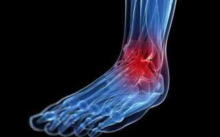 Виды артрита голеностопного сустава и методы лечения